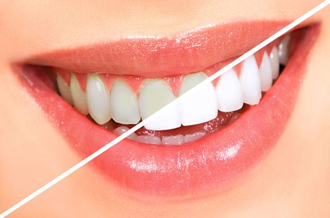 2 công thức làm trắng răng thực hiện ngay khi trời tối